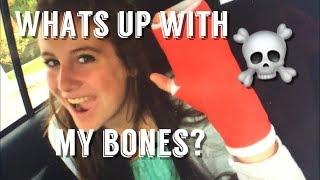 All About My Broken Bones!