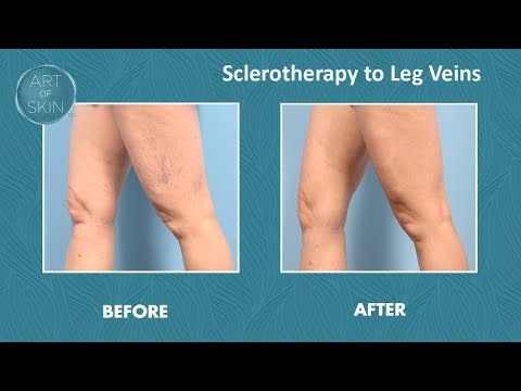 Sclerotherapy glycerin