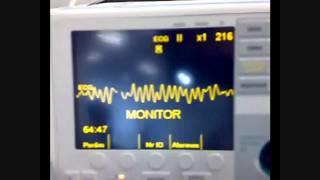 Eletrocardiograma - Fibrilação ventricular