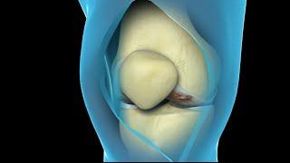 कुल घुटने रिप्लेसमेंट सर्जरी | न्यूक्लियस स्वास्थ्य