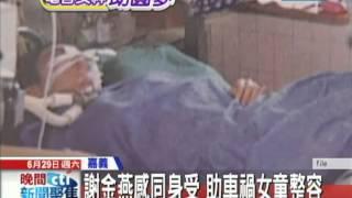 【中天】0629曾車禍毀容 謝金燕感同身受助女童