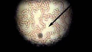 Ερυθρά -Λευκά αιμοσφαίρια