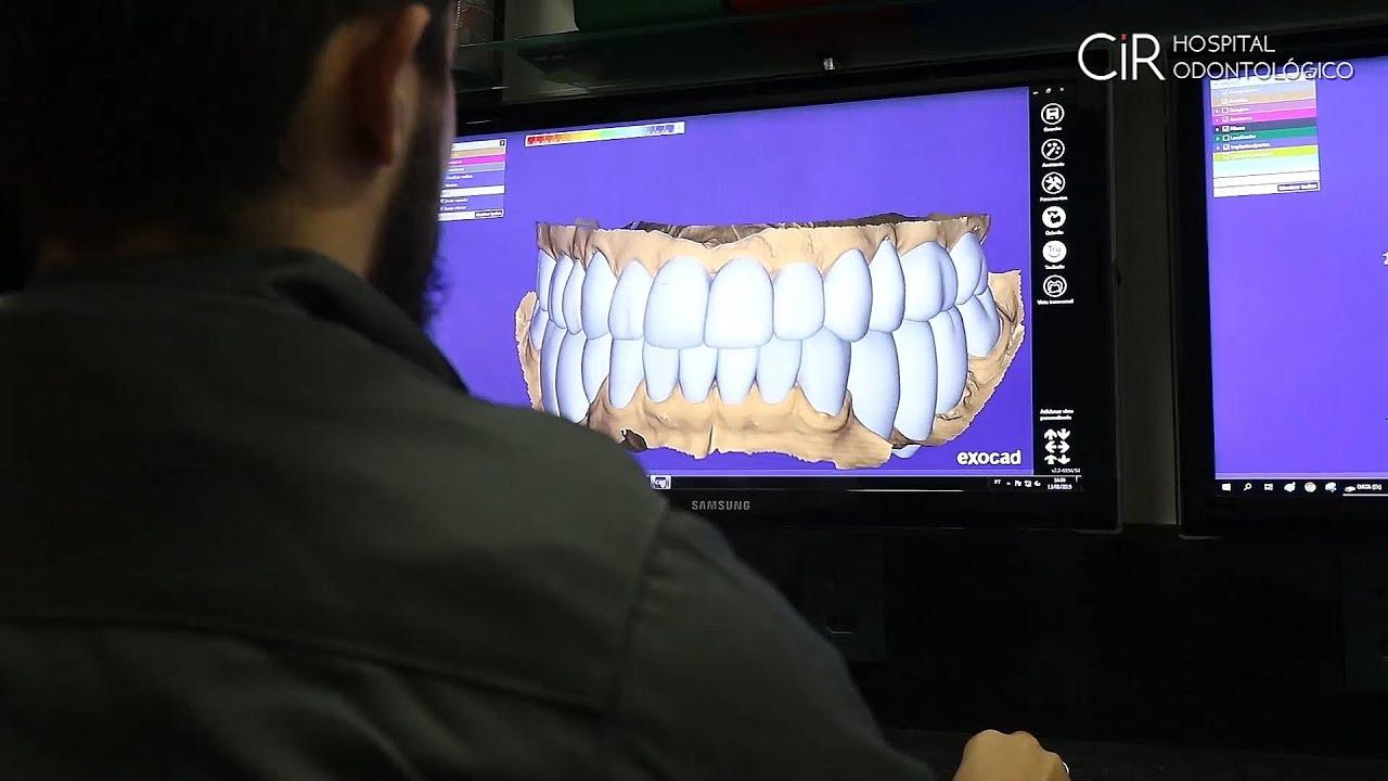 Reabilitação Funcional/Estética completa do sorriso