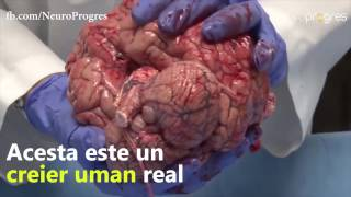 Cateva lucruri interesante despre creierul tau!