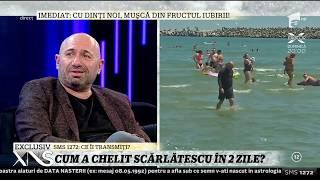 """Cum a chelit Chef Cătălin Scărlătescu: """"Mi-a căzut tot părul în două zile"""""""