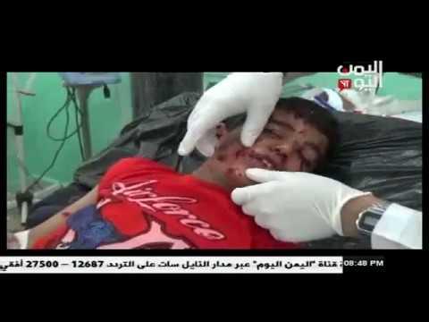 إصابة طفلين بجراح بليغة بقنبلة عنقودية من مخلفات العدوان السعودي في بني معاذ بصعدة 25 - 6 - 2017