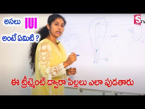 Dr.Sashi Priya - UI Treatment, For Pregnancy, in Telugu , Cost, Success Tips, is painful, |SumanTV