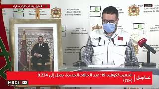 Bilan du Covid-19 : Point de presse du ministère de la Santé (07-06-2020)