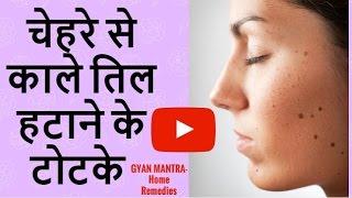 चेहरे से तिल को हटाने के टोटके उपाय | How To Remove Moles From Face Permanently