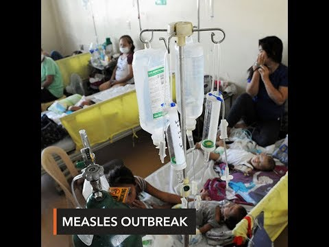 At least 70 deaths due to measles – DOH