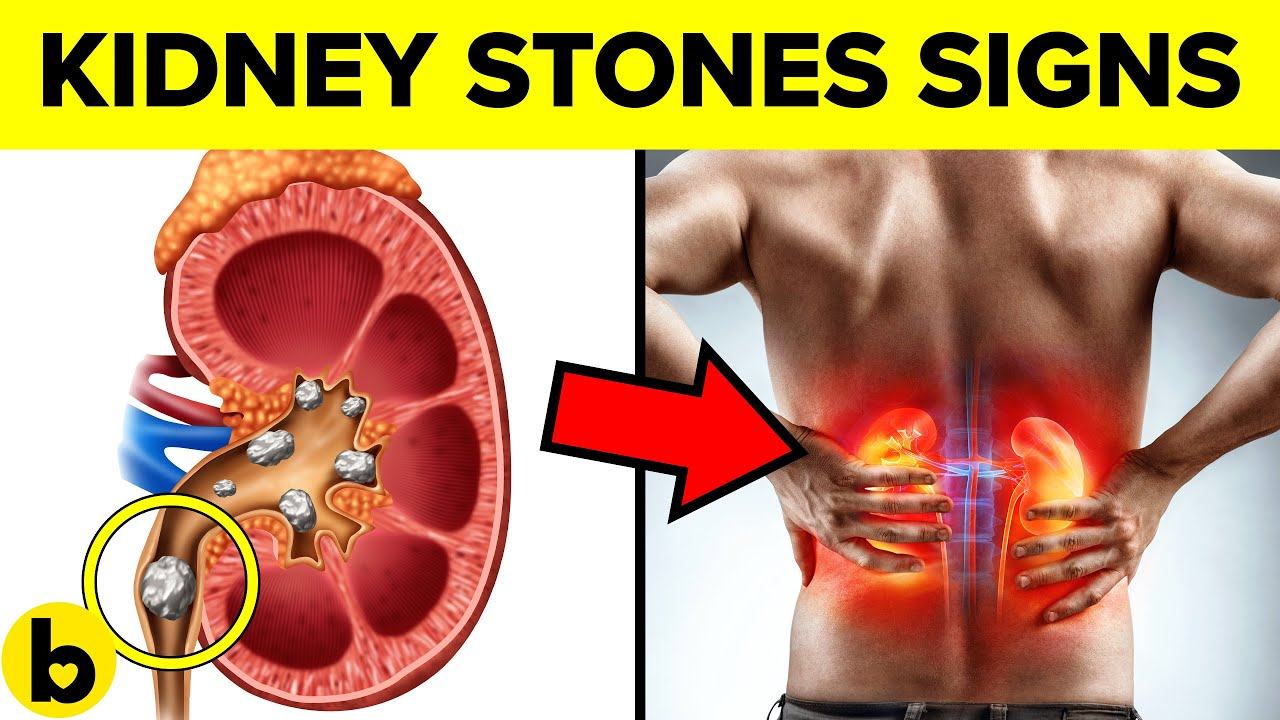 7 Warning Signs of Kidney Stones you must Know