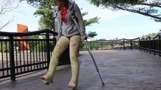 Emily with 2 broken legs. . .