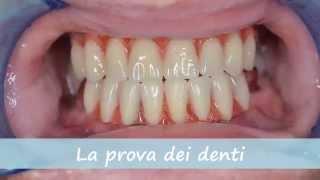 All on 4 - Protocolo - Impianti Dentali - Turismo Dentale Croazia