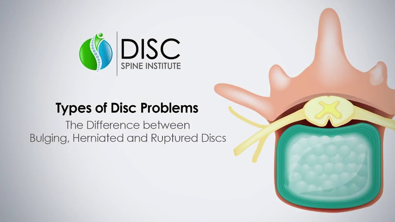 What is a Bulging Disc