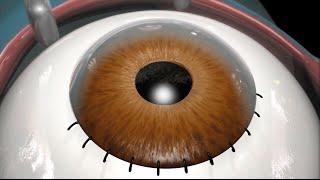 Cataract Surgery (2009)