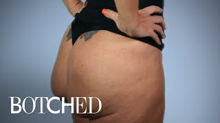 Botched | Butt Implants Gone Completely Wrong | E!
