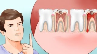 6 Proven Ways to Stop a Toothache and Relieve Pain