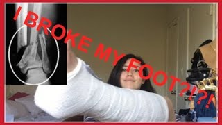 I BROKE MY FOOT?!?! |cleliamasis