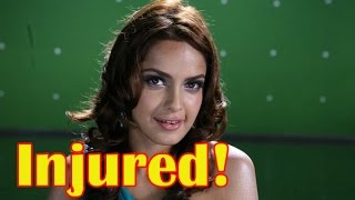 Shazahn Padamsee injured while shooting for Garba-disco - BT