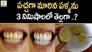 Teeth Whitening At Home In 3 Minutes  - Mana Arogyam | Teeth Care Tips