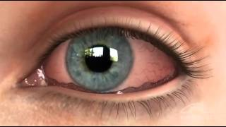 Conjunctivochalasis CCH Dry Eye Animation