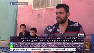 حكاية سوري بترت يده وكسرت قدمه  خلال قصف النظام