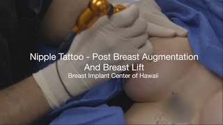 Nipple Tattoo Demo Video, Post Breast Augmentation by The Breast Implant Center of Hawaii