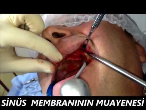 Diş kisti ameliyatı , implant tedavisi , çene kisti ameliyatı , kapalı sinüs lifting