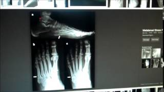 Fracture of the Fifth Metatarsal