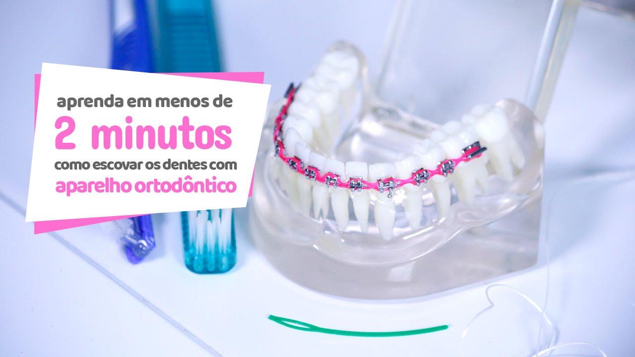 A higienização bucal e do aparelho ortodôntico é, senão a parte mais importante do tratamento