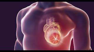 Infarto: saiba como acontece um ataque cardíaco
