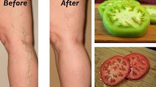Natural Remedies for Varicose Veins | Natural Cures