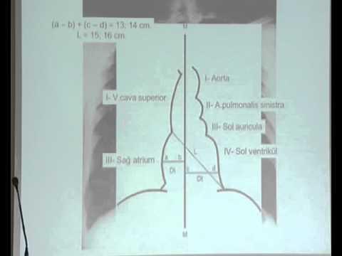 PA Akciğer Grafisinde(Telegrafi) Kalp Anatomisi - TIP / TUS VİDEO