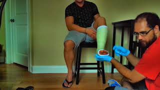 kamile gets his first leg cast!