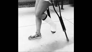 Crutches and leg cast