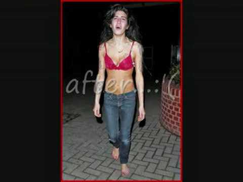 amy-winehouse-before-and-after-bethkaulitz