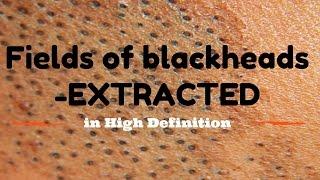 Blackhead fields- extractions in HD