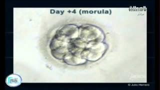 """فيديو / تعرف على الفحص الجيني ما قبل الزرع """"PGD"""""""