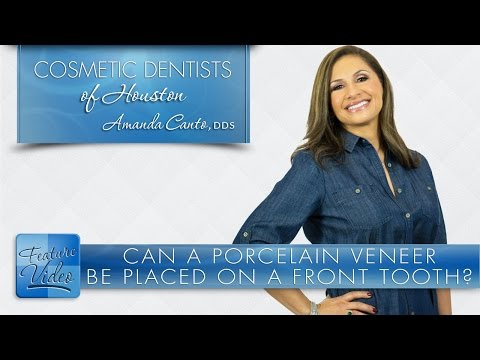 Can a Porcelain Veneer Be Placed on a Front Tooth? -­ Cosmetic Dentists of Houston