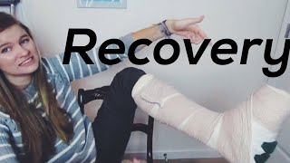 Bunion Surgery Recovery Process