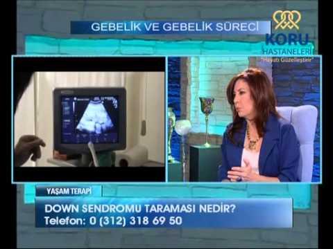Gebelik döneminde down sendromu (Prof. Dr. Aydan BİRİ) (koruhastanesi.com)