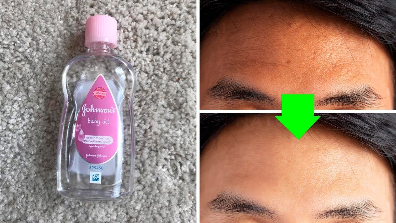 Get Rid of Dark Spots Using Baby Oil