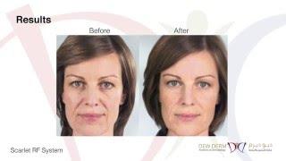 Scarlet RF System Treatment at DewDerm Aesthetics & Dermatology Abu Dhabi
