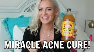 Miracle Acne Cure - Apple Cider Vinegar ❤