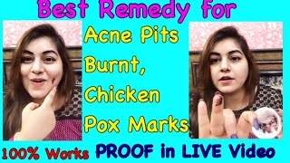 Best Home Remedy for Acne Pits, Burnt Marks, Chicken Pox Scars - Proof in LIVE Video | JSuper Kaur