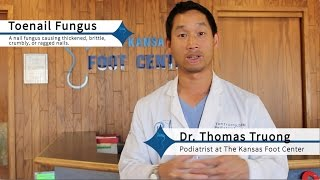 How to Get Rid of Toenail Fungus Effectively