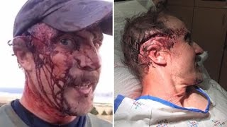 Hiker Details How He Survived Being Horrifically Attacked By Grizzly Bear Twice