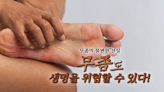 TV메디컬약손_무좀(경북대학교 피부과 이원주교수) 다시보기