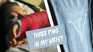 Pins in my wrist: My X-ray and new cast