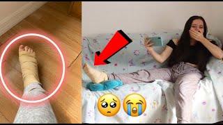 I BROKE MY LEG PRANK ON MY SISTER! **SHE CRIED**